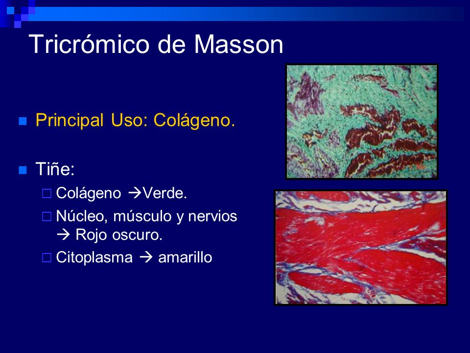 Tricrómico de Masson Principal Uso: Colágeno. Tiñe: Colágeno Verde.