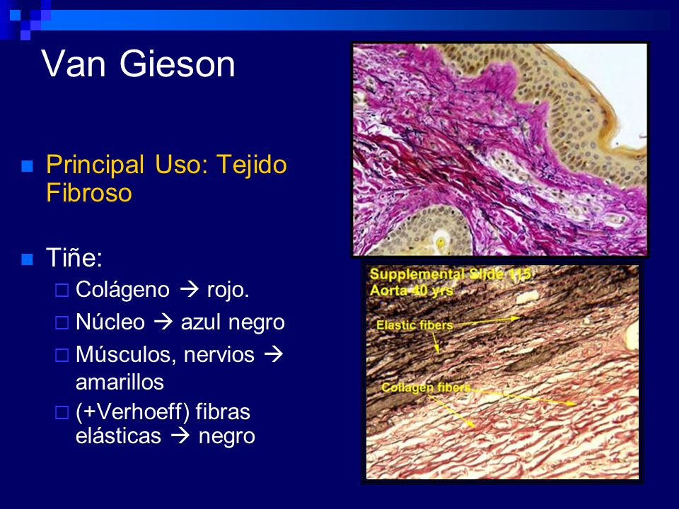 Van Gieson Principal Uso: Tejido Fibroso Tiñe: Colágeno  rojo.