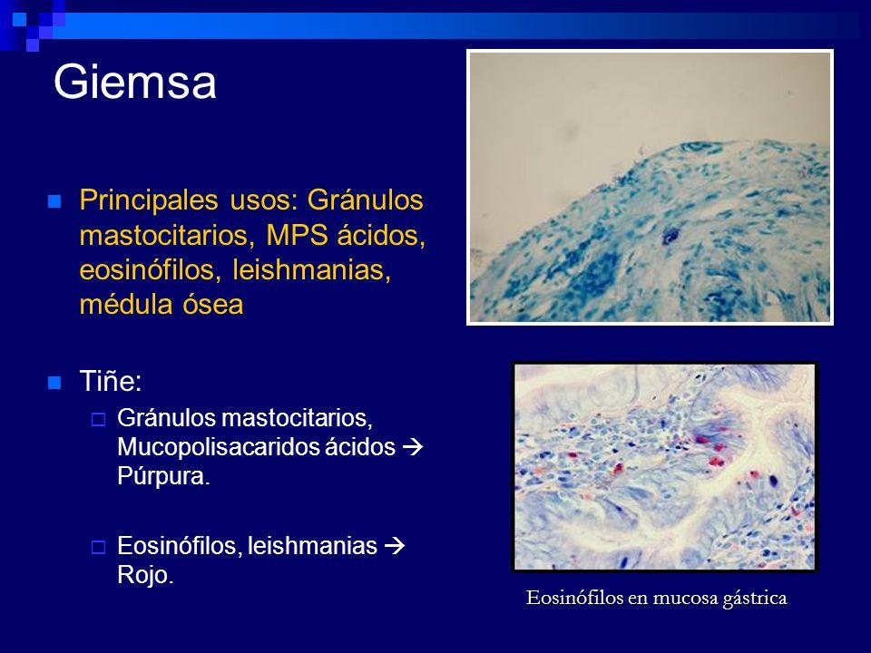 GiemsaPrincipales usos: Gránulos mastocitarios, MPS ácidos, eosinófilos, leishmanias, médula ósea. Tiñe: