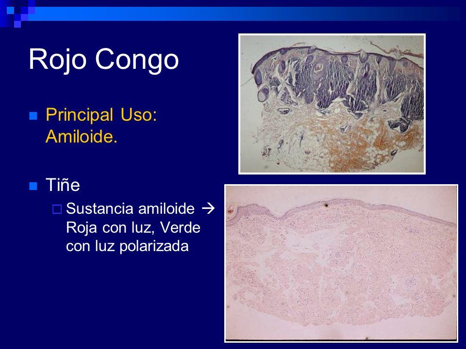 Rojo Congo Principal Uso: Amiloide. Tiñe