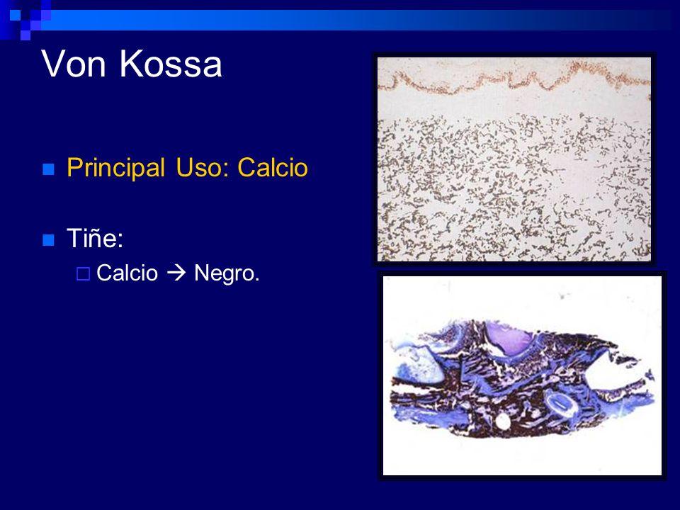 Von Kossa Principal Uso: Calcio Tiñe: Calcio  Negro.