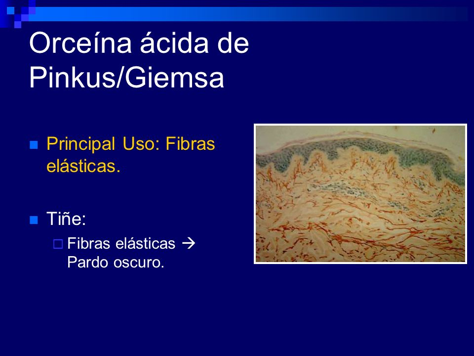 Orceína ácida de Pinkus/Giemsa