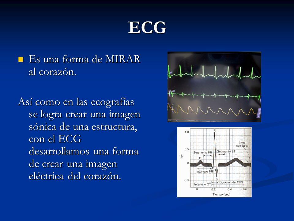 ECG Es una forma de MIRAR al corazón.