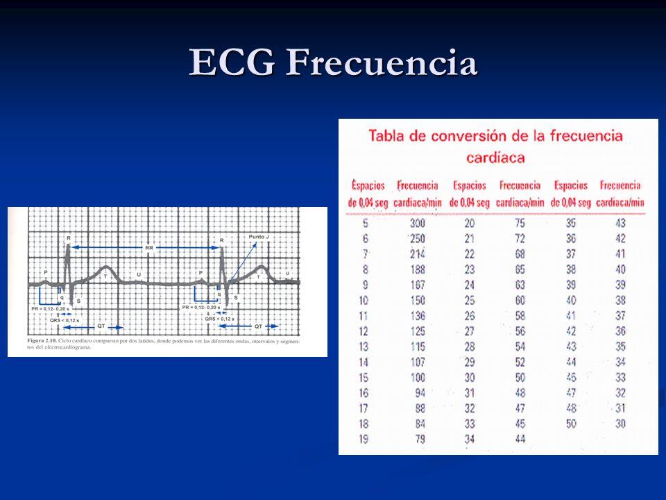 ECG Frecuencia