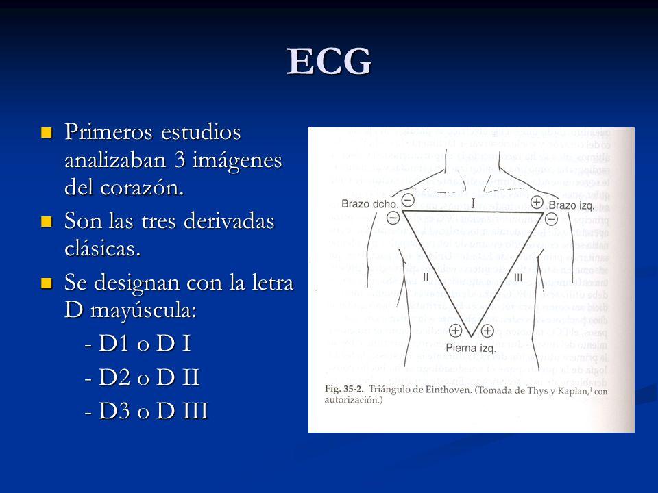 ECG Primeros estudios analizaban 3 imágenes del corazón.