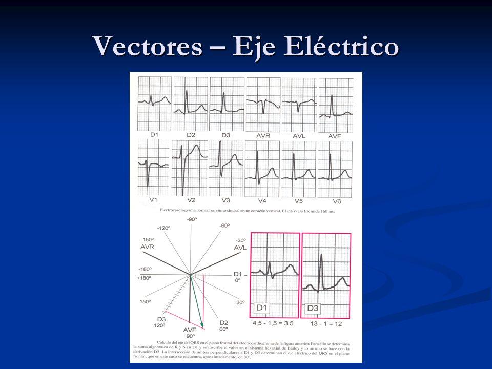 Vectores – Eje Eléctrico