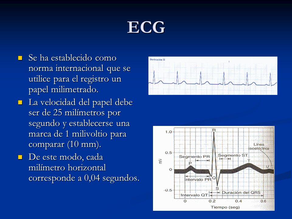 ECG Se ha establecido como norma internacional que se utilice para el registro un papel milimetrado.