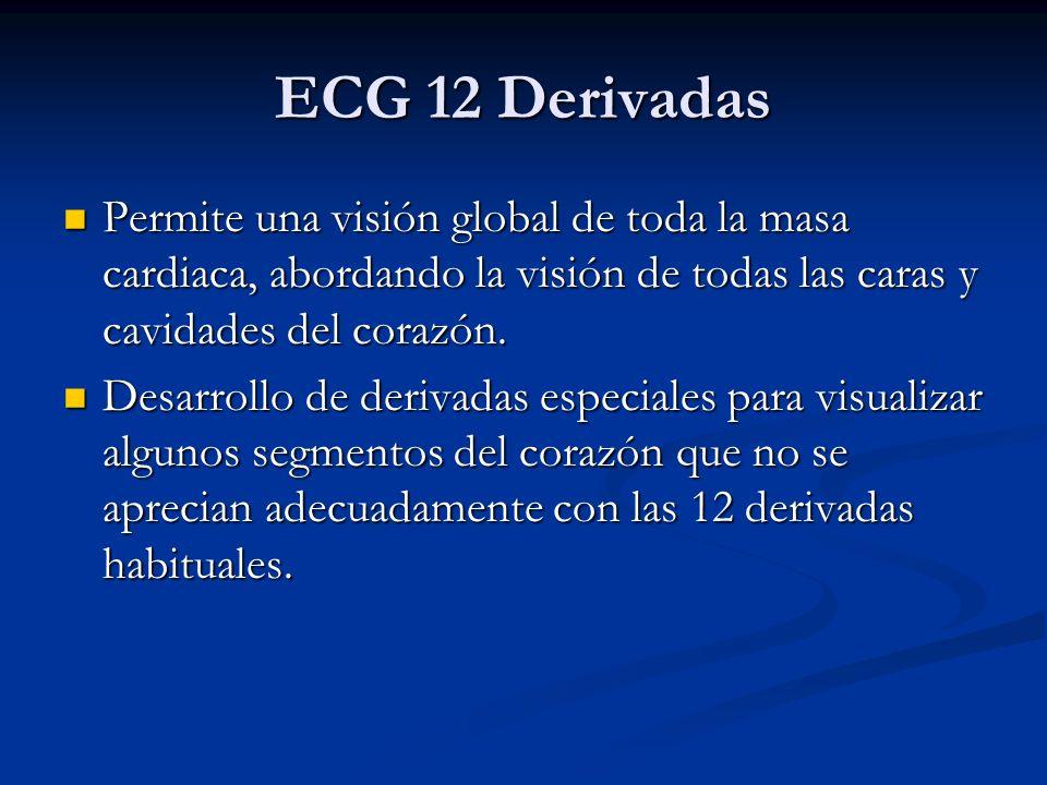 ECG 12 Derivadas Permite una visión global de toda la masa cardiaca, abordando la visión de todas las caras y cavidades del corazón.