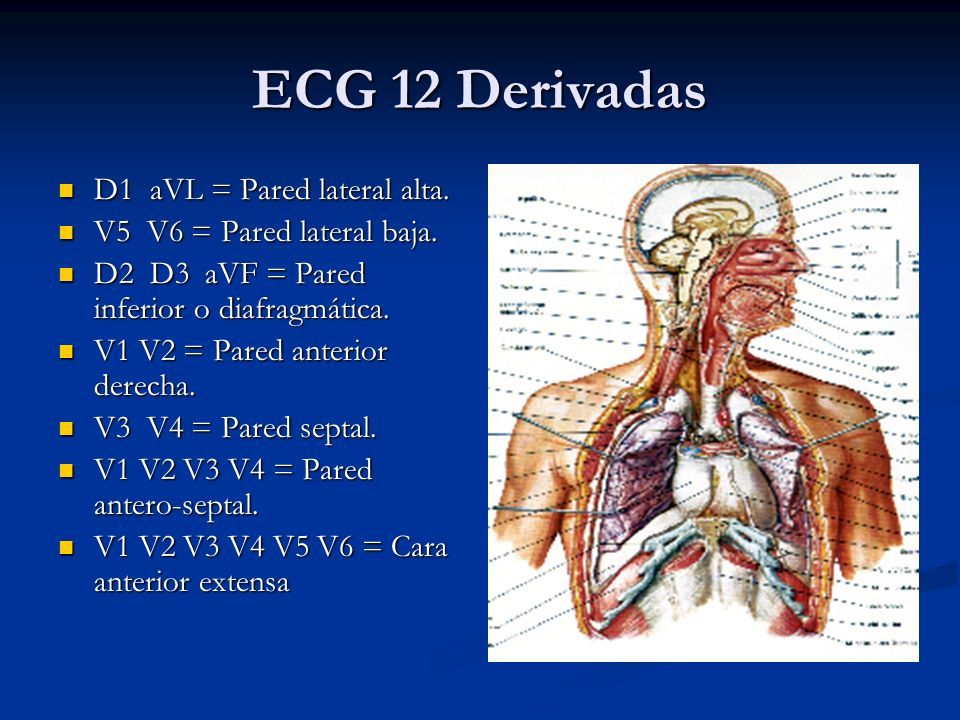 ECG 12 Derivadas D1 aVL = Pared lateral alta.