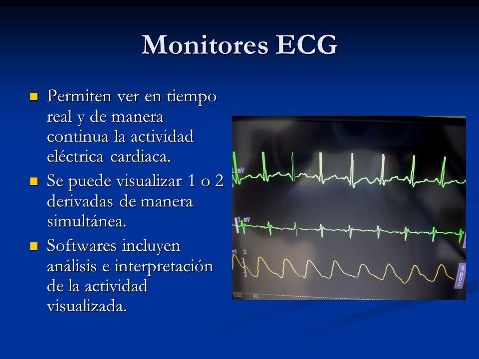 Monitores ECG Permiten ver en tiempo real y de manera continua la actividad eléctrica cardiaca.