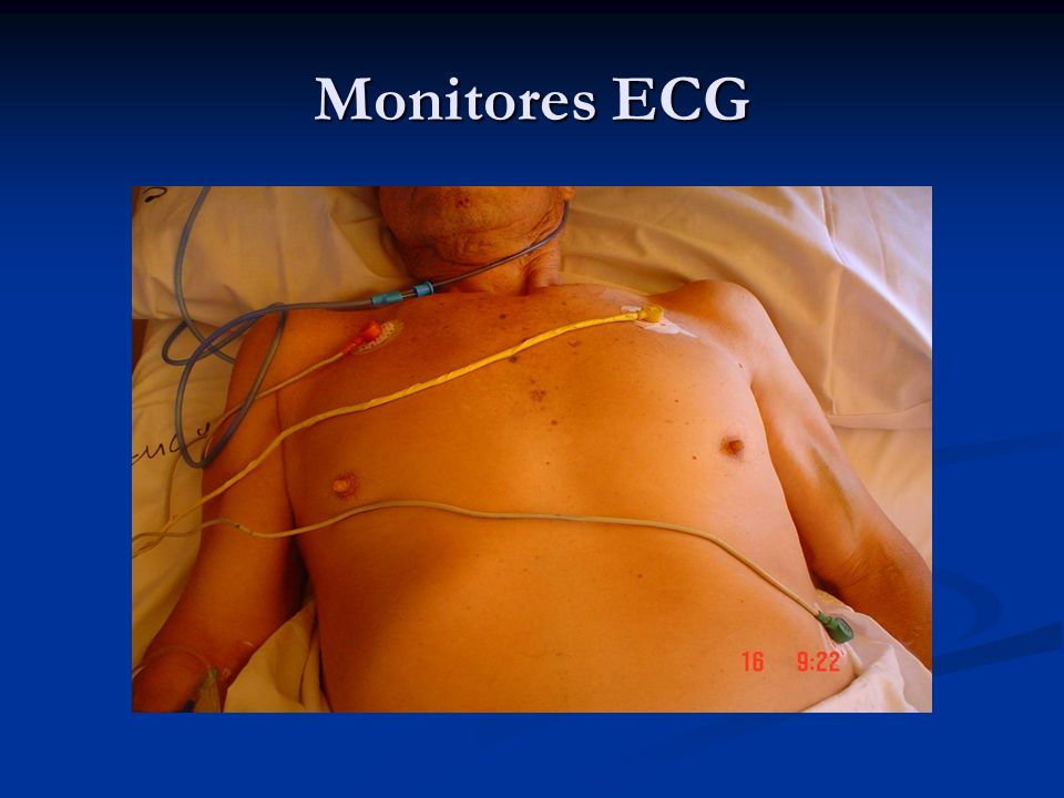 Monitores ECG