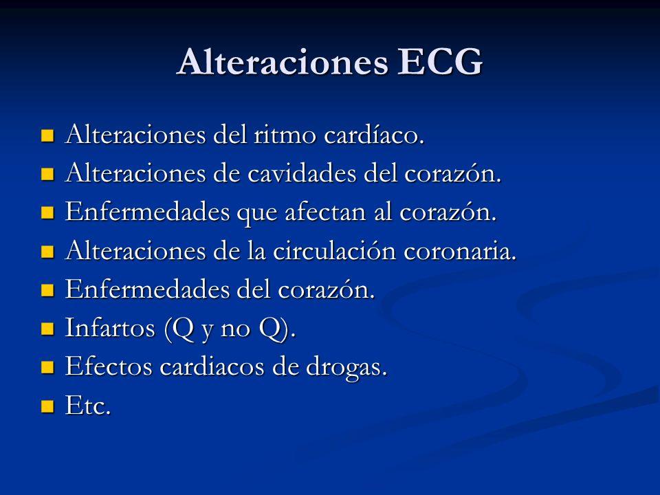 Alteraciones ECG Alteraciones del ritmo cardíaco.