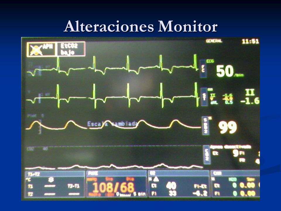 Alteraciones Monitor