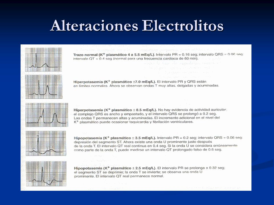Alteraciones Electrolitos