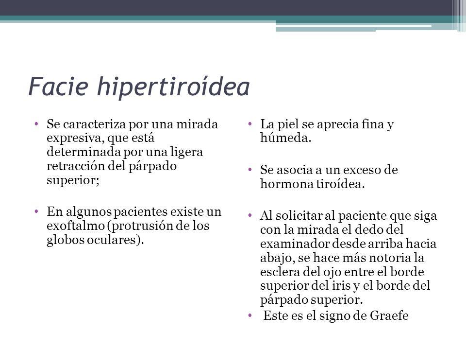 Facie hipertiroídea Se caracteriza por una mirada expresiva, que está determinada por una ligera retracción del párpado superior;