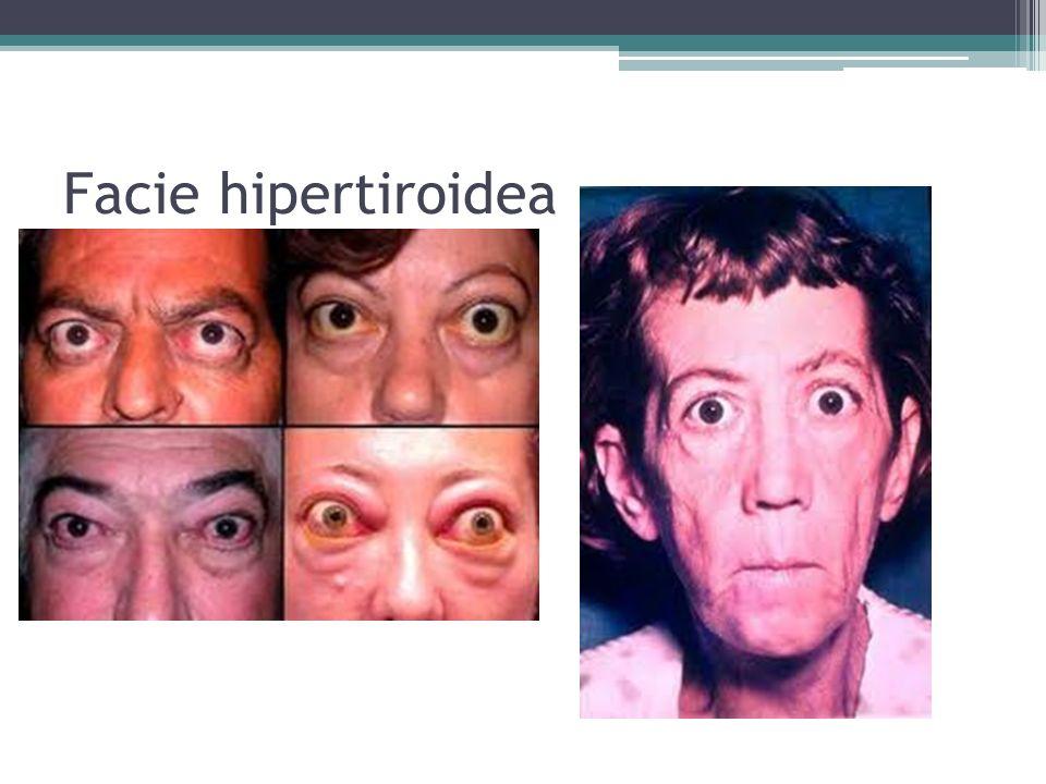 Facie hipertiroidea