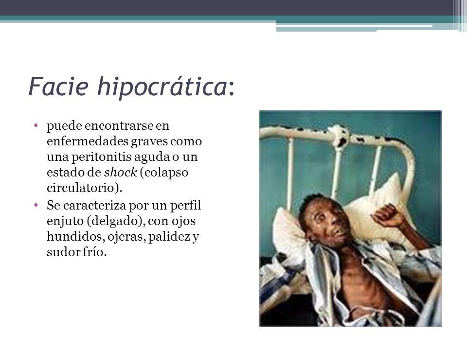 Facie hipocrática: puede encontrarse en enfermedades graves como una peritonitis aguda o un estado de shock (colapso circulatorio).