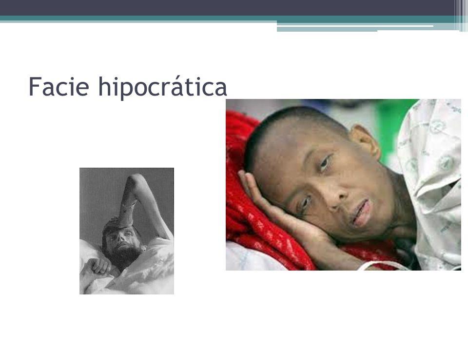 Facie hipocrática