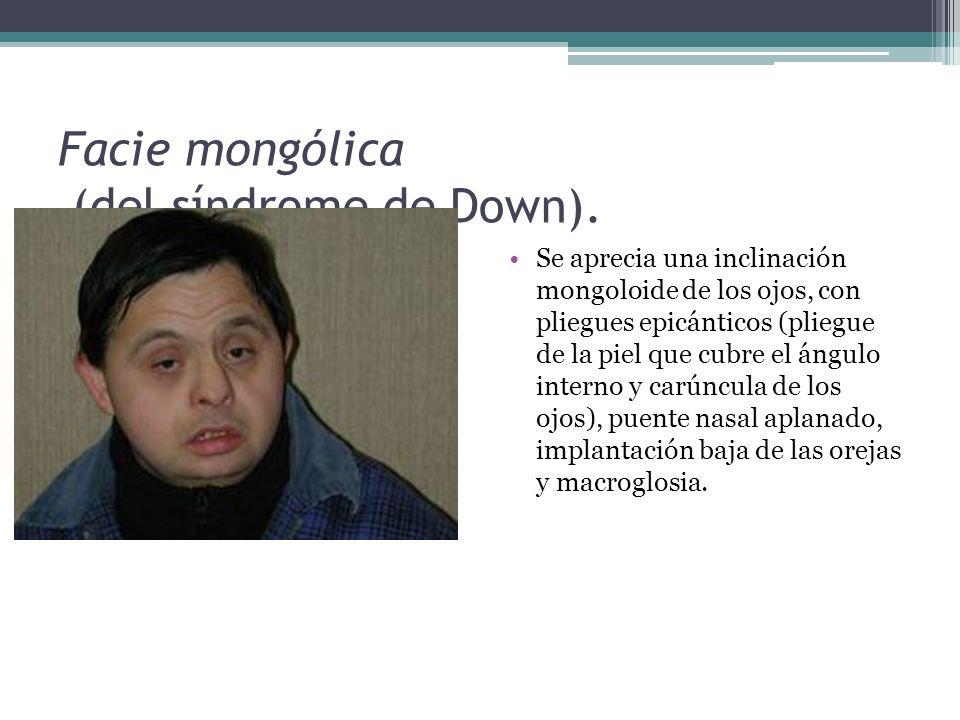 Facie mongólica (del síndrome de Down).