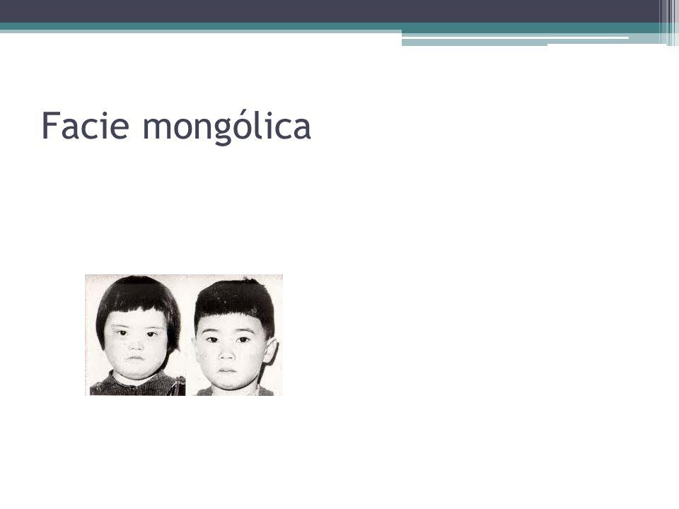 Facie mongólica