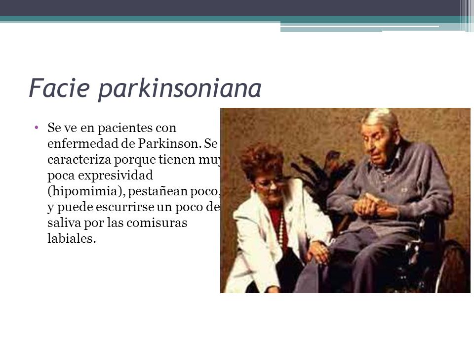 Facie parkinsoniana