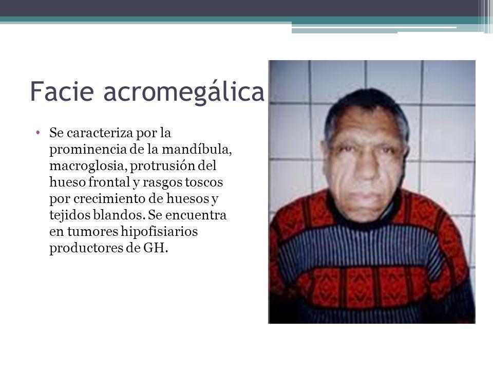 Facie acromegálica