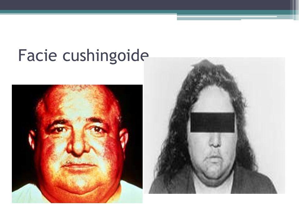 Facie cushingoide