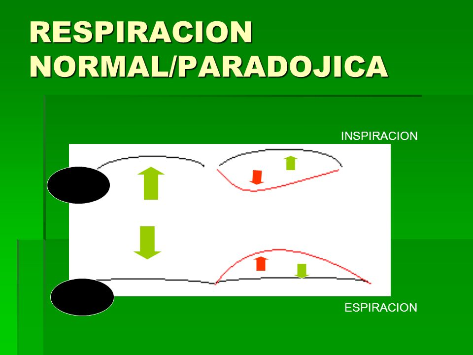 RESPIRACION NORMAL/PARADOJICA