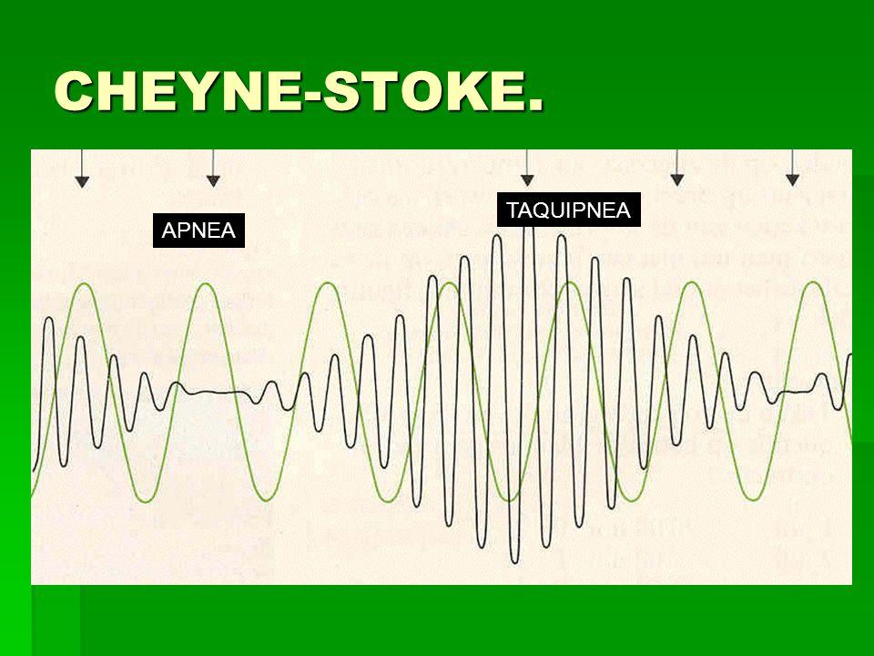 CHEYNE-STOKE. TAQUIPNEA APNEA