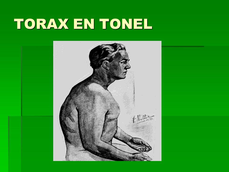 TORAX EN TONEL