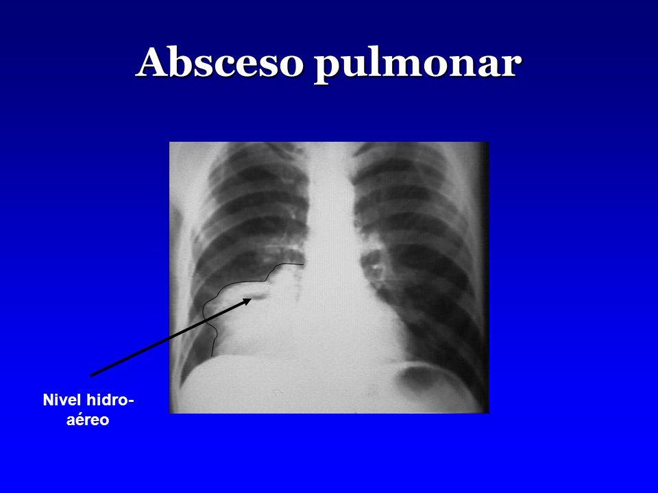 Absceso pulmonar Nivel hidro-aéreo