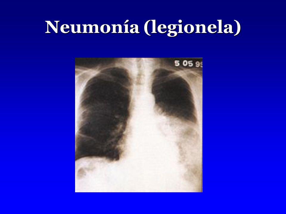 Neumonía (legionela)