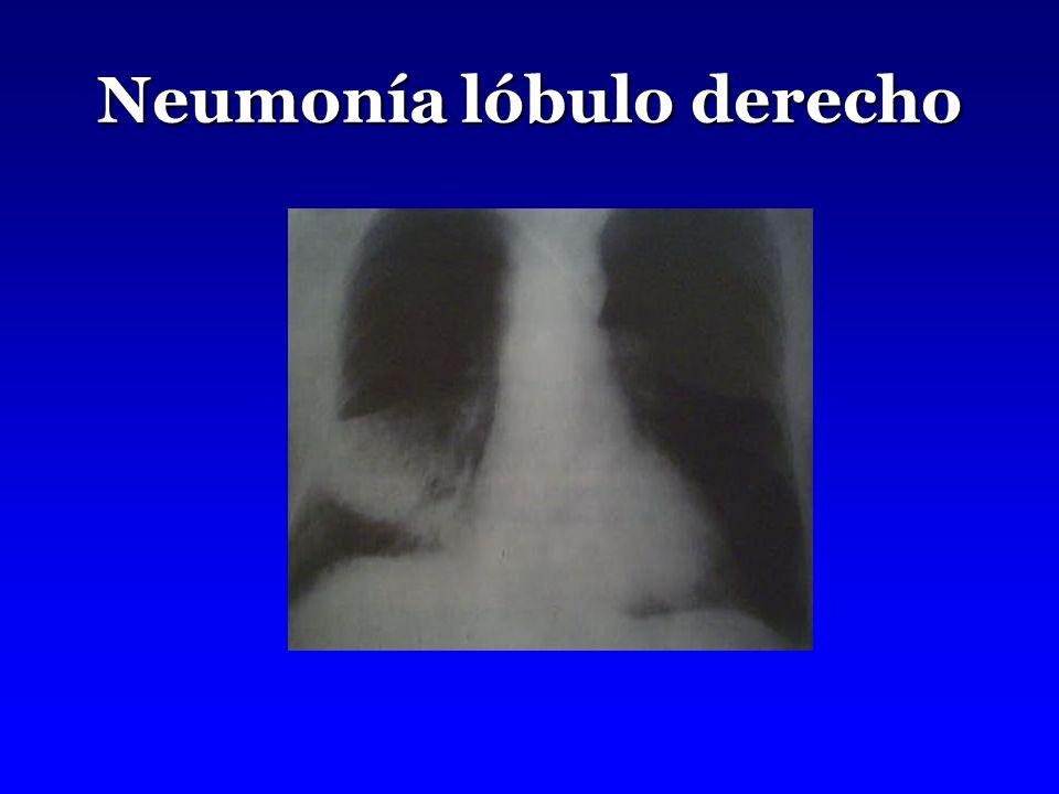 Neumonía lóbulo derecho
