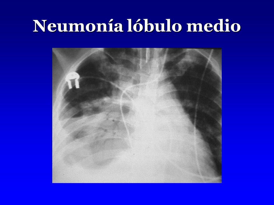 Neumonía lóbulo medio
