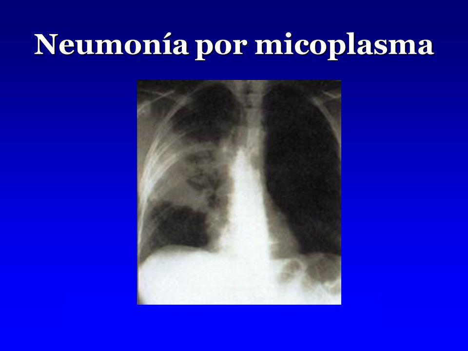 Neumonía por micoplasma