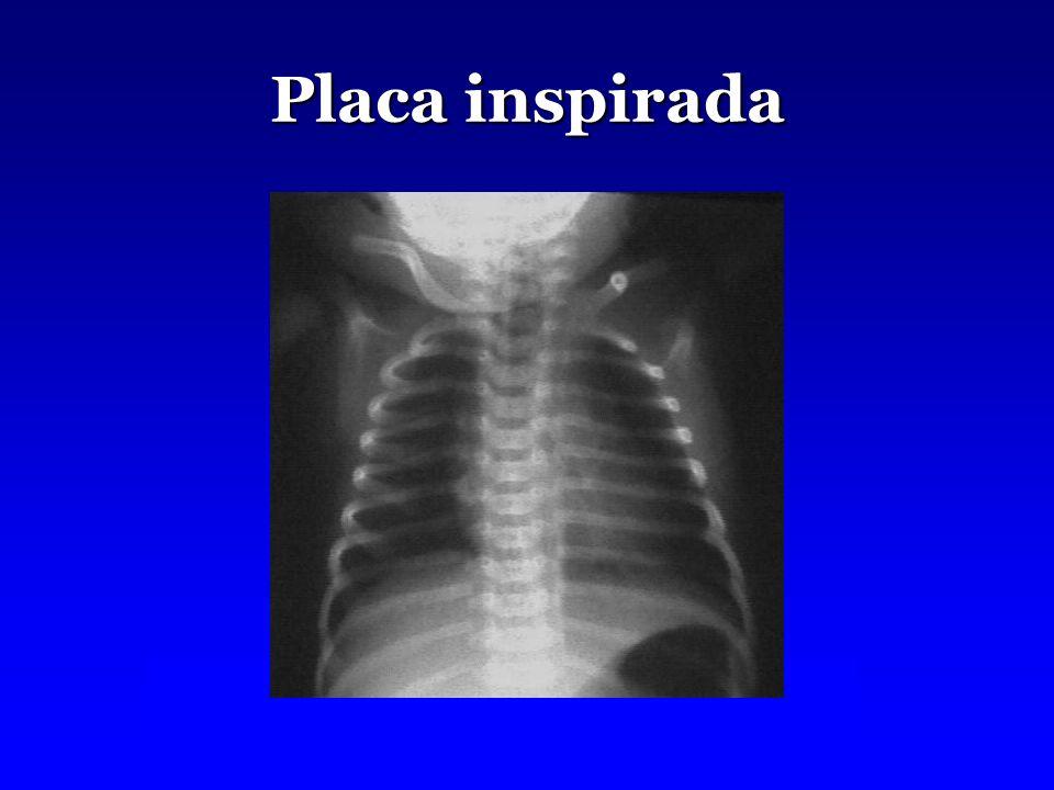 Placa inspirada
