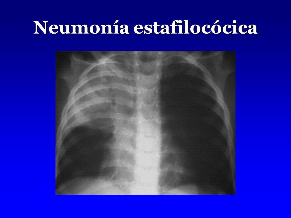 Neumonía estafilocócica