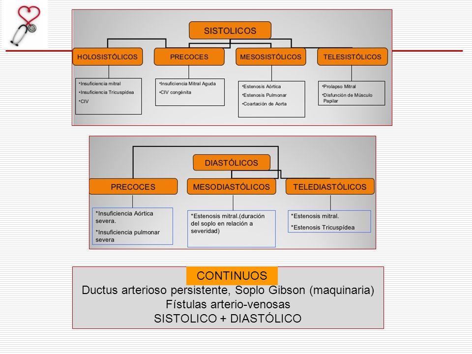 Ductus arterioso persistente, Soplo Gibson (maquinaria)