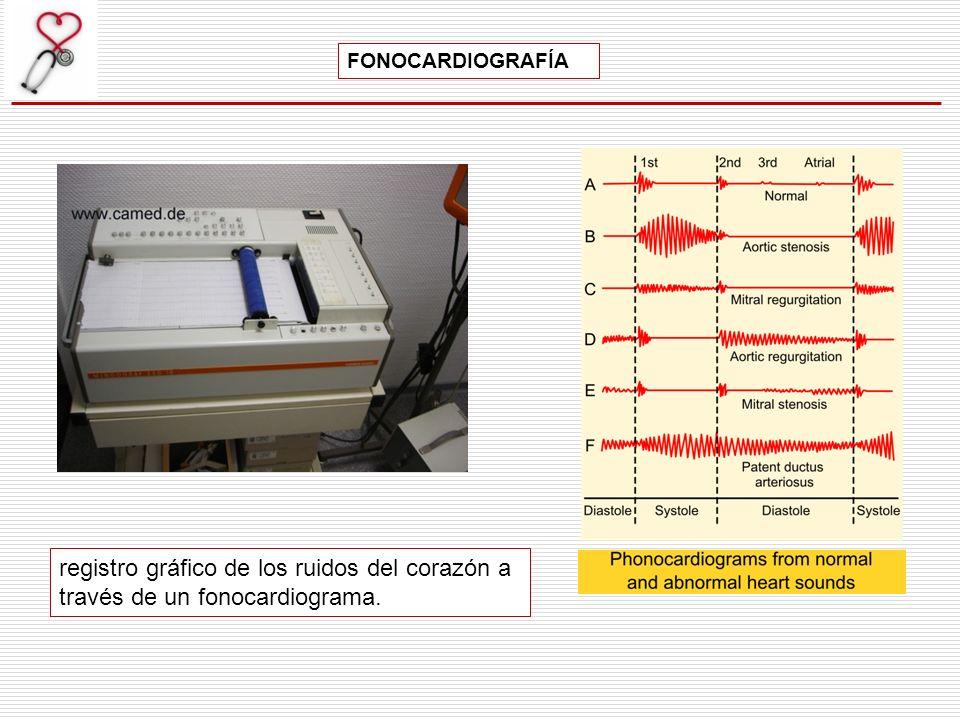 FONOCARDIOGRAFÍA registro gráfico de los ruidos del corazón a través de un fonocardiograma.