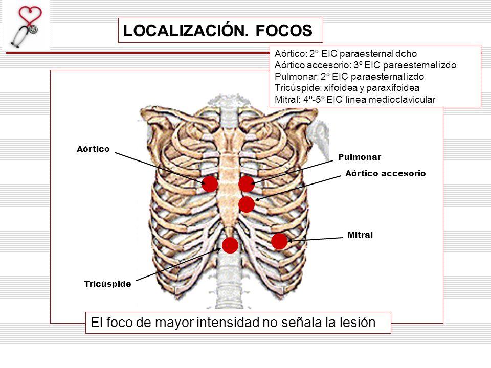 LOCALIZACIÓN. FOCOS El foco de mayor intensidad no señala la lesión