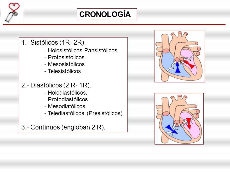 CRONOLOGÍA 1.- Sistólicos (1R- 2R). - Holosistólicos-Pansistólicos.