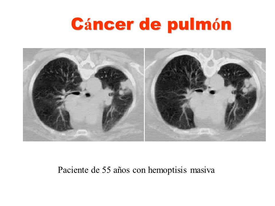 Cáncer de pulmón Paciente de 55 años con hemoptisis masiva