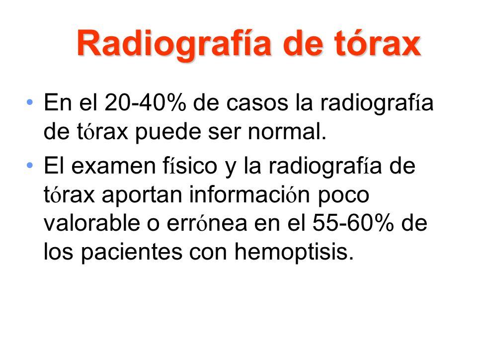Radiografía de tóraxEn el 20-40% de casos la radiografía de tórax puede ser normal.