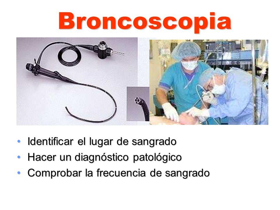 Broncoscopia Identificar el lugar de sangrado