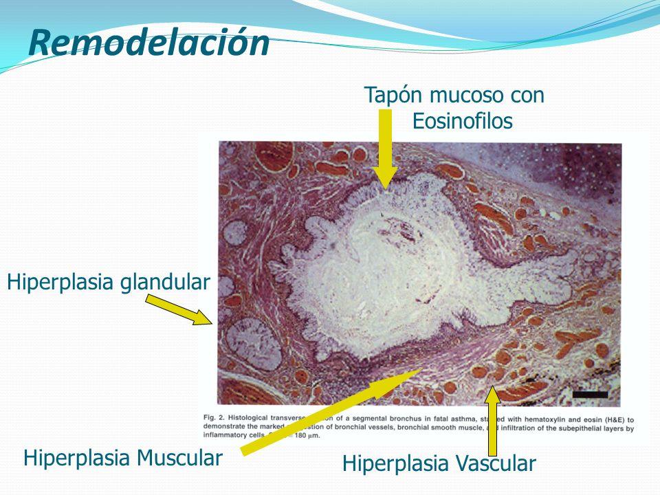 Remodelación Tapón mucoso con Eosinofilos Hiperplasia glandular
