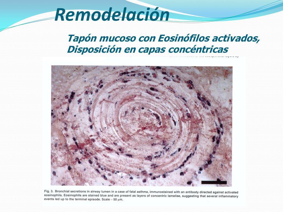 Remodelación Tapón mucoso con Eosinófilos activados,