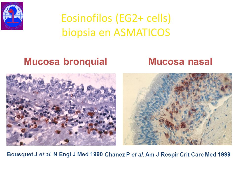 Eosinofilos (EG2+ cells) biopsia en ASMATICOS