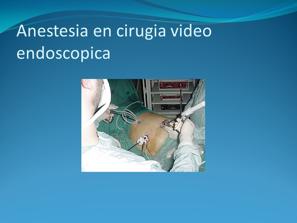 Anestesia en cirugia video endoscopica