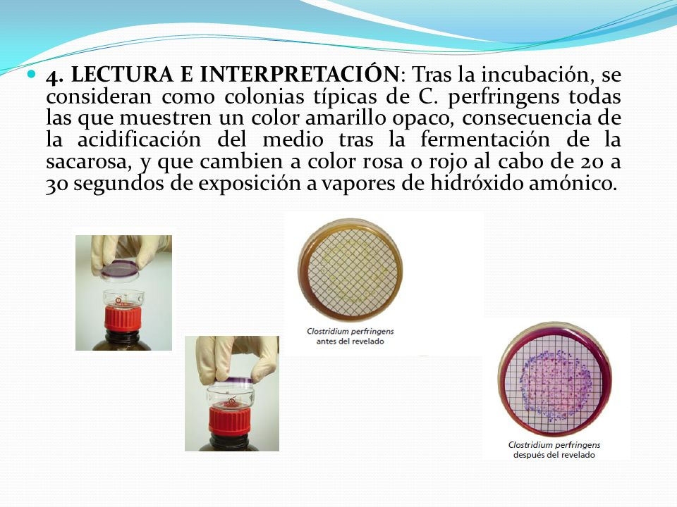 4. LECTURA E INTERPRETACIÓN: Tras la incubación, se consideran como colonias típicas de C.