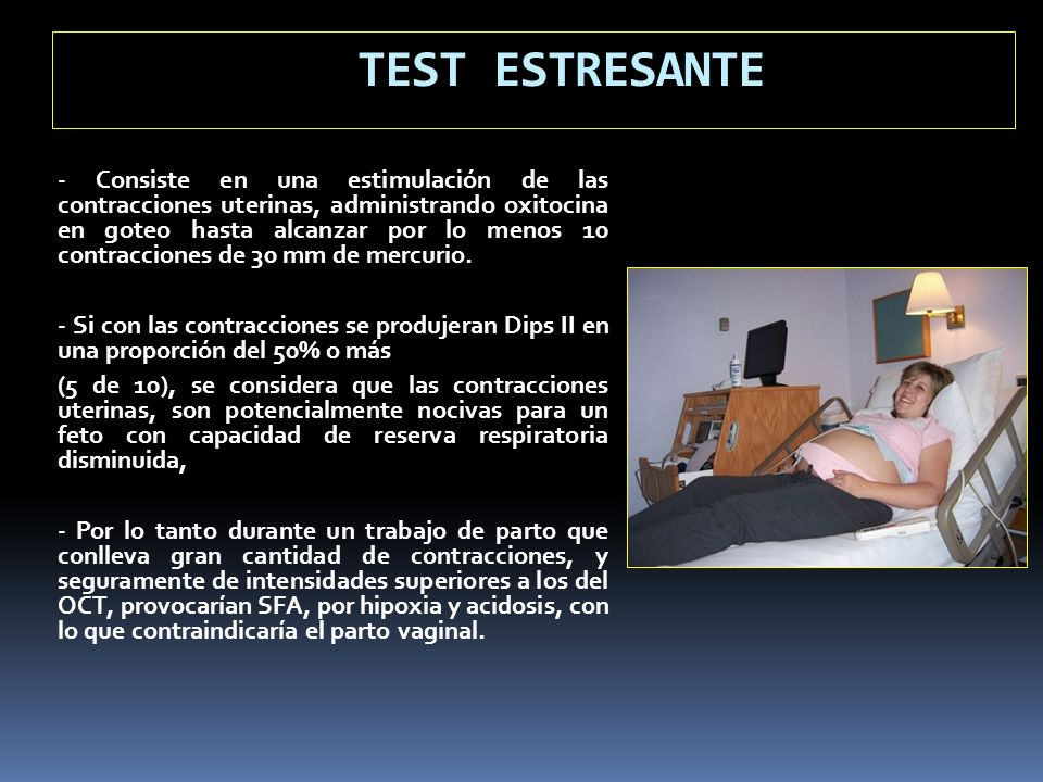 TEST ESTRESANTE